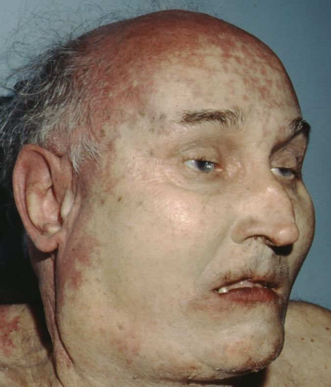 This unidentified man checked into a downtown Raleigh hotel and died in his room in December 1994.